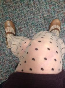 Fabulous Worst Legs